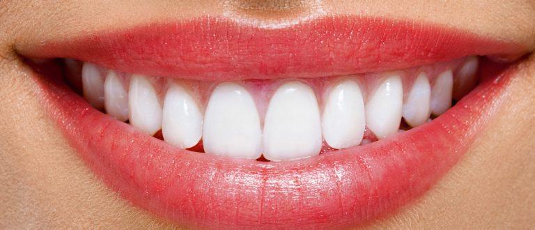 holivudski osmeh vozdovac