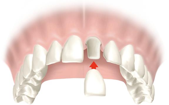 Krunice za zube vozdovac